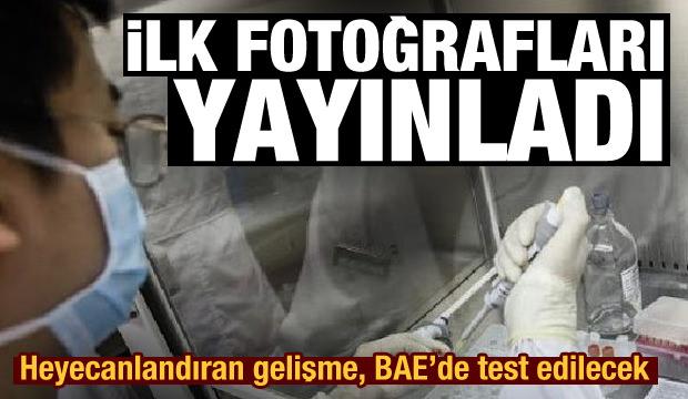 Heyecanlandıran gelişme, BAE'de test edilecek! Çin, korona aşının ilk fotoğraflarını yayınladı