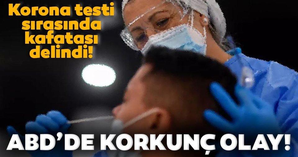 Son Dakika Haberi: Korkunç olay! Korona sürüntü testi yapılırken kafatası duvarı delindi
