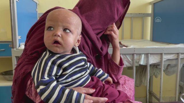 KABİL – Afganistan'daki çocuklar açlık nedeniyle ölümle karşı karşıya
